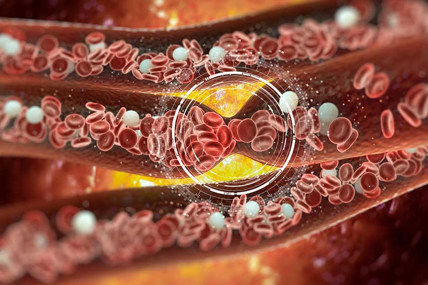 World Heart Day: Can Liposomal Vitamin C give you a healthy heartbeat?